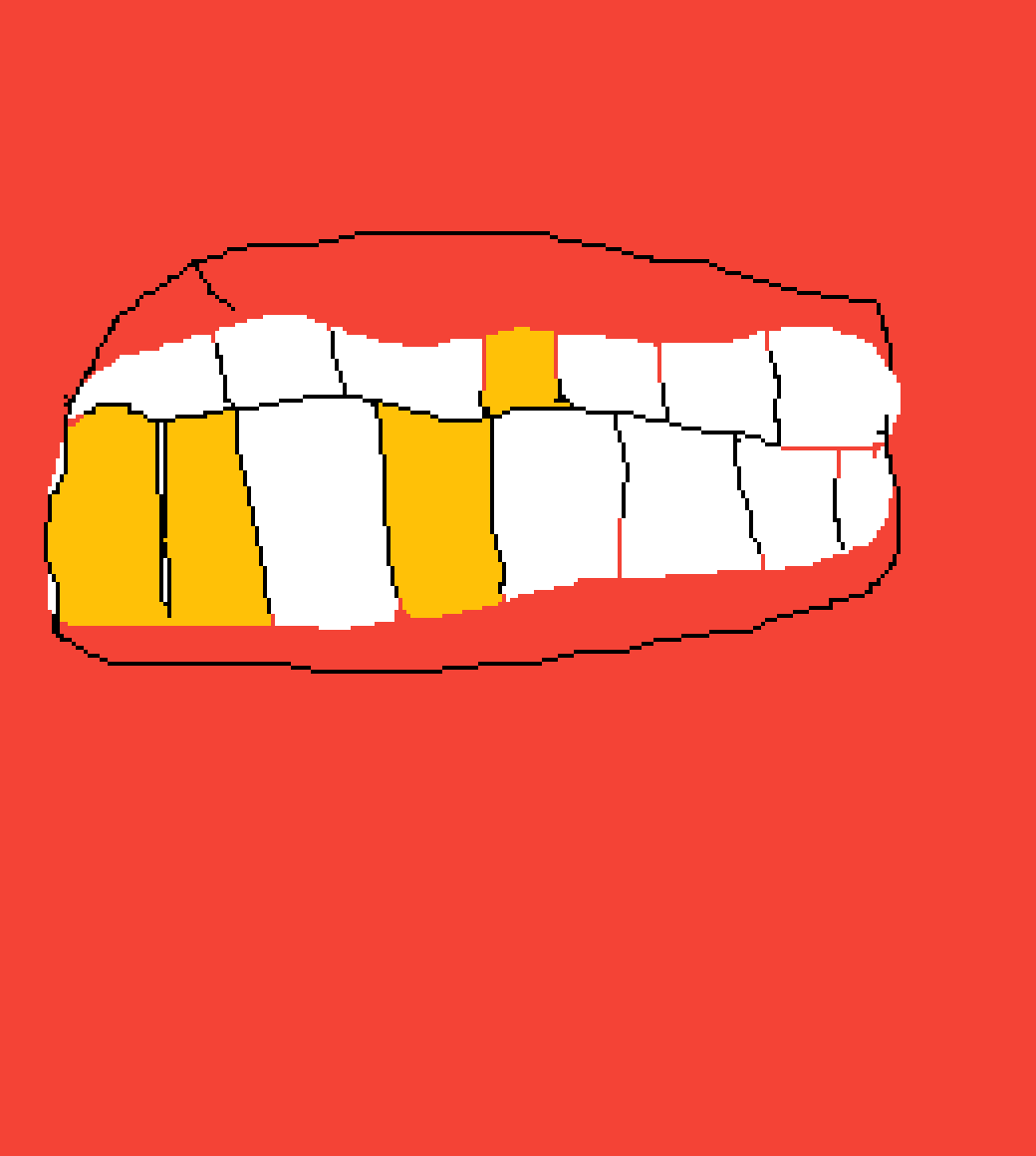 gold and white teeth by kwamemonday11