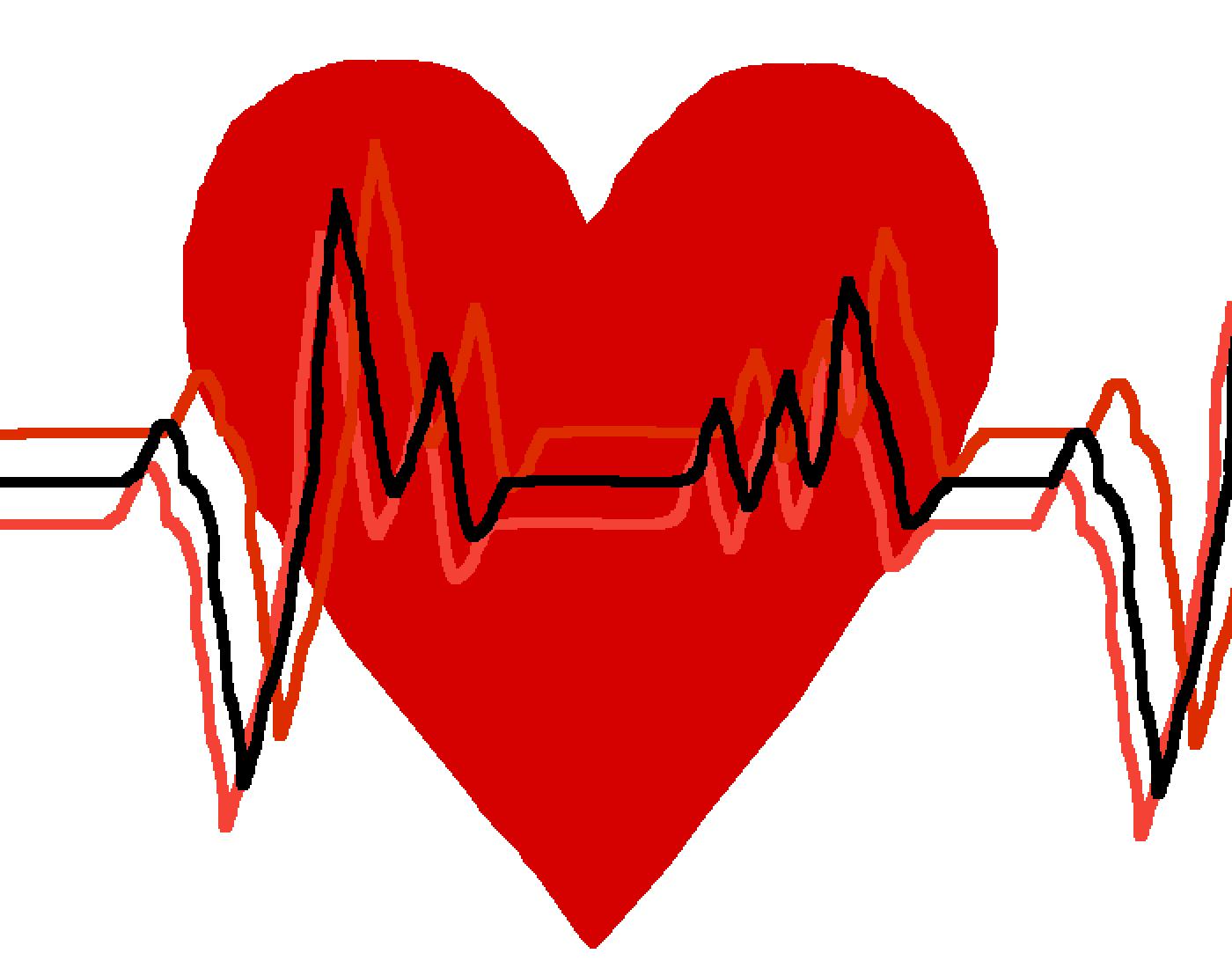 main-image-heart monitor thing  by MusicalTrashBin